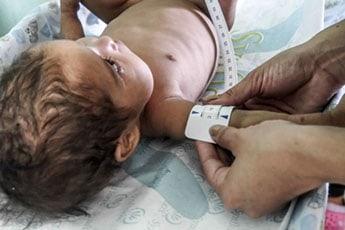 Treating acute malnutrition
